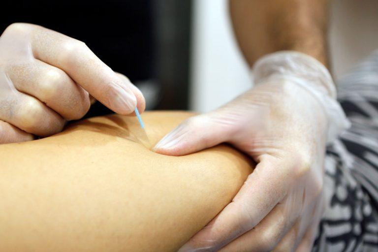 fisioterapia-herradon-villar-puncion-seca